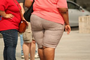 Remove Fat Deposits from Buttocks with the Cinderella Solution